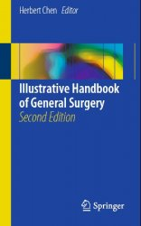 Illustrative Handbook of General Surgery, 2nd edition