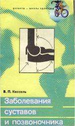 Заболевания суставов и позвоночника