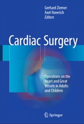 Cardiac Surgery: Operations on the Heart and Great Vessels in Adults and Children