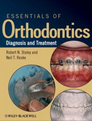 Essentials of Orthodontics Diagnosis and Treatment