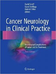 Cancer Neurology in Clinical Practice: Neurological Complications of Cancer and its Treatment, 3rd Edition