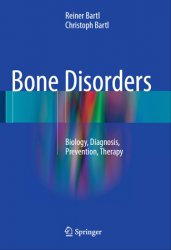 Bone Disorders: Biology, Diagnosis, Prevention, Therapy