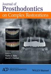 Journal of Prosthodontics on Complex Restorations