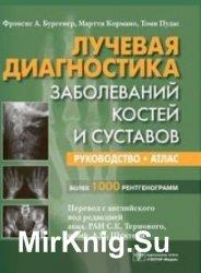 Лучевая диагностика заболеваний костей и суставов